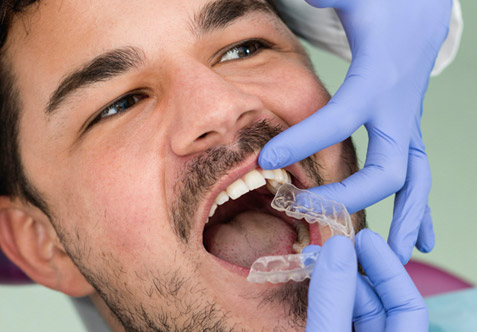 Man lying in a dental chair and beginning teeth whitening treatment.